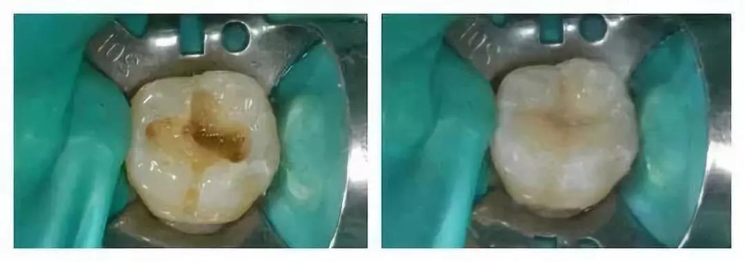 牙齿修复黑科技:浙大发明神奇牙齿修补液 滴两滴就能修补牙釉质